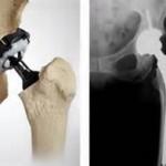 <a class=&quot;amazingslider-posttitle-link&quot; href=&quot;https://www.unitrauma.es/acerca-de-la-protesis-total-de-cadera/&quot; target=&quot;_self&quot;>ACERCA DE LA PROTESIS TOTAL DE CADERA</a>