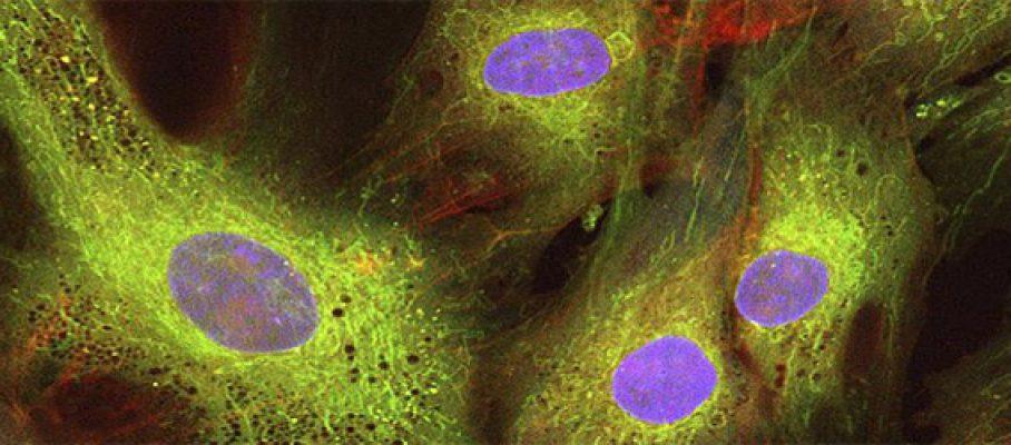celulas-madre-mesenquimales