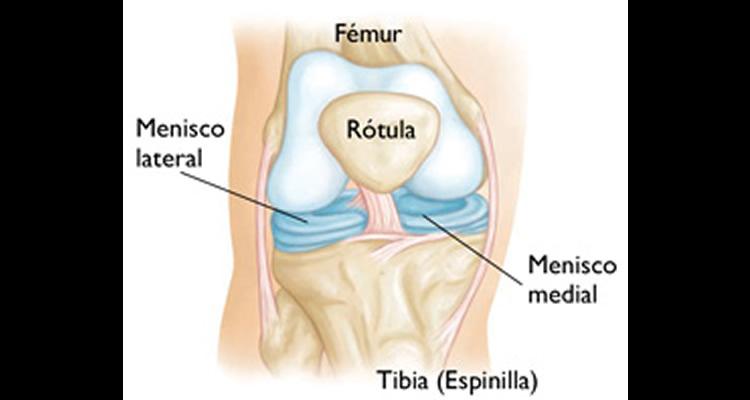 menisco1