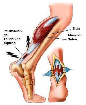 tendon aquiles rotura