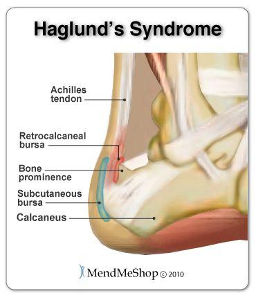 haglund1-2